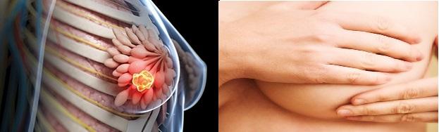Как удаляют фиброаденому молочной железы