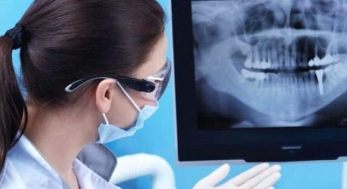 рентген зубов на мониторе